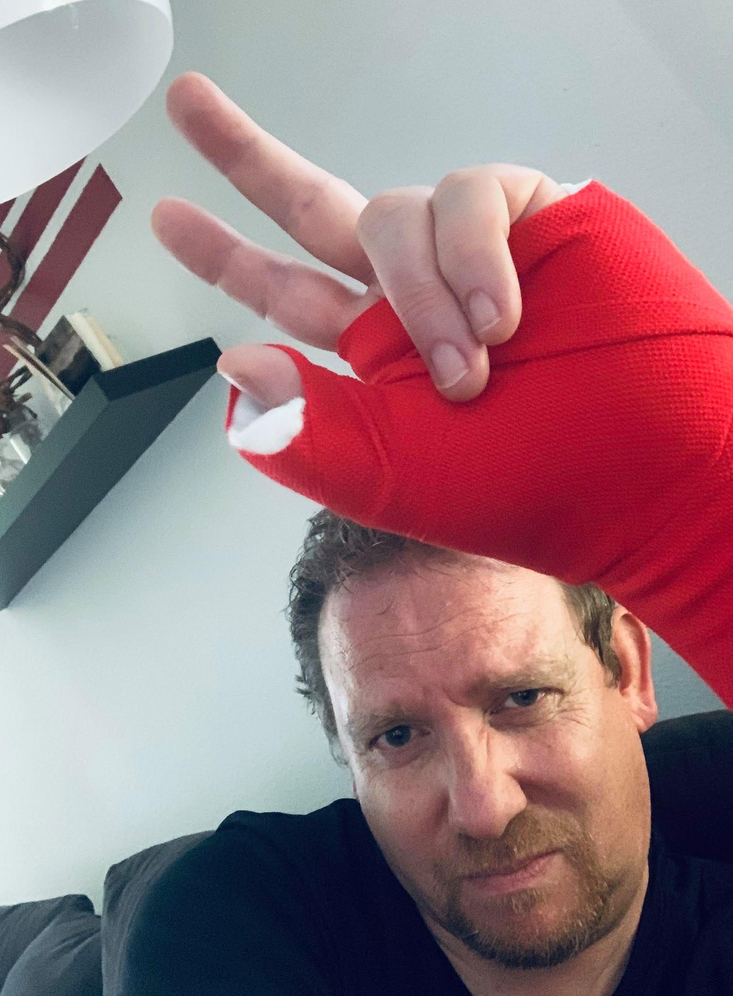 Arnes gebrochener Arm